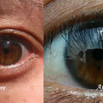 Biokinesis Eye Color Change – Easy Methods