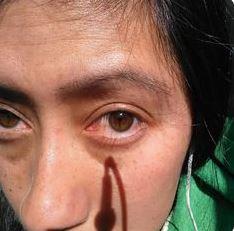 biokinesis proof 2
