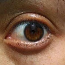 biokinesis proof 13