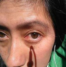 biokinesis proof 14