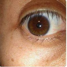 biokinesis proof 19