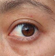 biokinesis proof 20